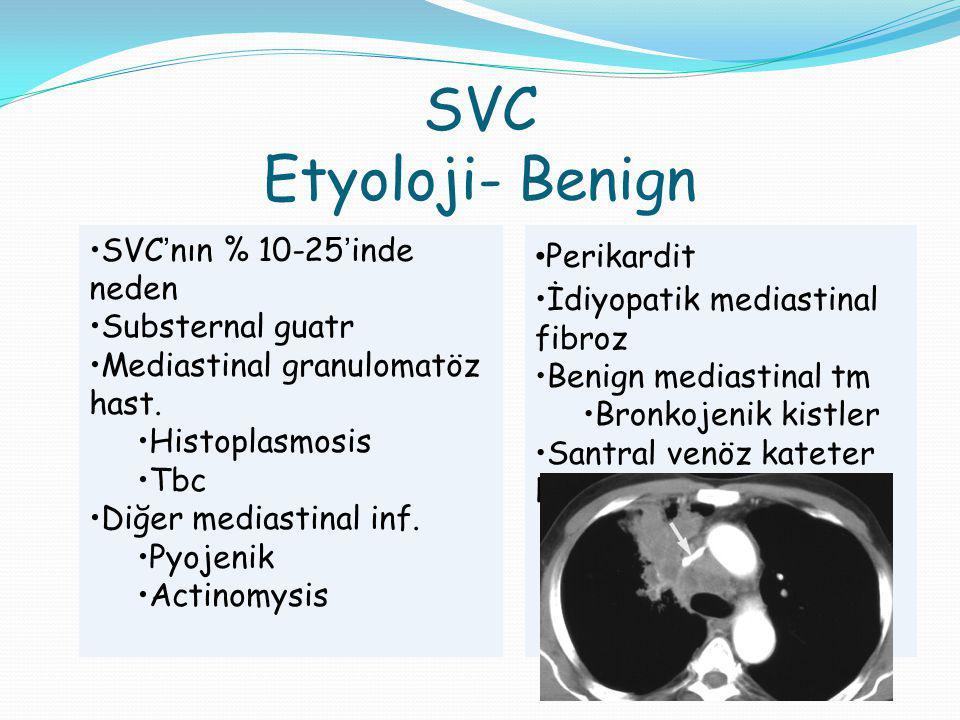 SVC Etyoloji- Benign SVC'nın % 10-25'inde neden Substernal guatr Mediastinal granulomatöz hast.