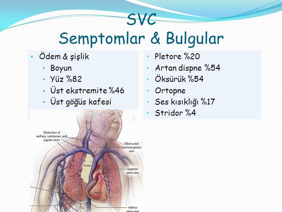 Akc CA+ Mediastinal RT Masif hemoptizi