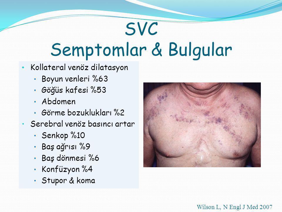 Kollateral venöz dilatasyon Boyun venleri %63 Göğüs kafesi %53 Abdomen Görme bozuklukları %2 Serebral venöz basıncı artar Senkop %10 Baş ağrısı %9 Baş dönmesi %6 Konfüzyon %4 Stupor & koma Wilson L, N Engl J Med 2007 SVC Semptomlar & Bulgular
