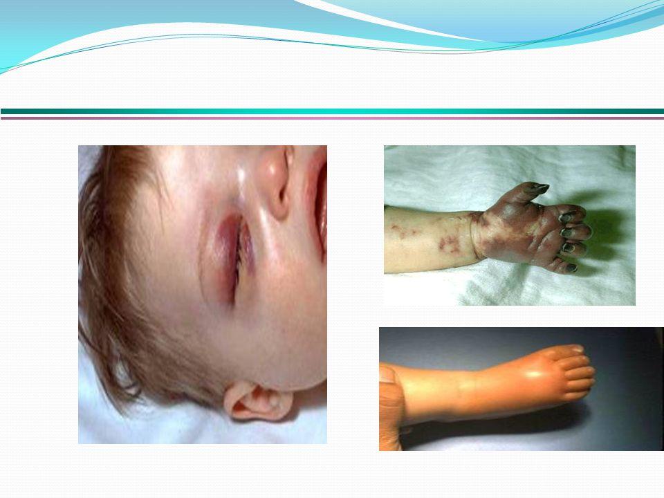KKK aşısı (Kızamık-Kızamıkçık-Kabakulak) Kızamığa bağlı zatürre, orta kulak iltihabı ve SSPE ( subakut sklerozan panensefalit) hastalığından, doğumsal kızamıkçık sendromu ve kabakulaktan, KPA aşısı Pnömokok denilen bakterilere bağlı gelişen zatürre, beyin iltihabı ve kan zehirlenmesinden DaBT-İPA-Hib aşısı, tek enjeksiyonla Difteri, Boğmaca, Tetanoz, Polio ve Menenjit olmak üzere 5 hastalıktan korur.
