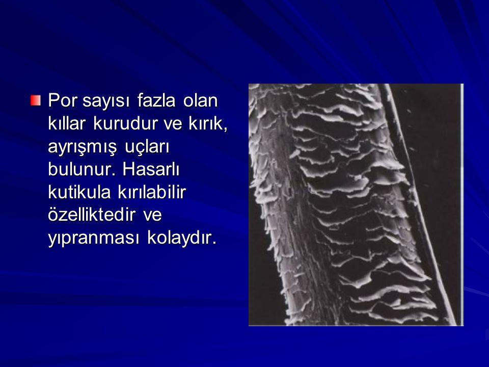 Por sayısı fazla olan kıllar kurudur ve kırık, ayrışmış uçları bulunur. Hasarlı kutikula kırılabilir özelliktedir ve yıpranması kolaydır.