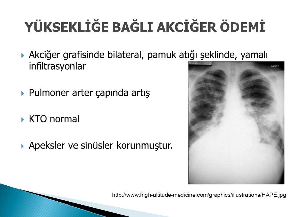  Akciğer grafisinde bilateral, pamuk atığı şeklinde, yamalı infiltrasyonlar  Pulmoner arter çapında artış  KTO normal  Apeksler ve sinüsler korunm