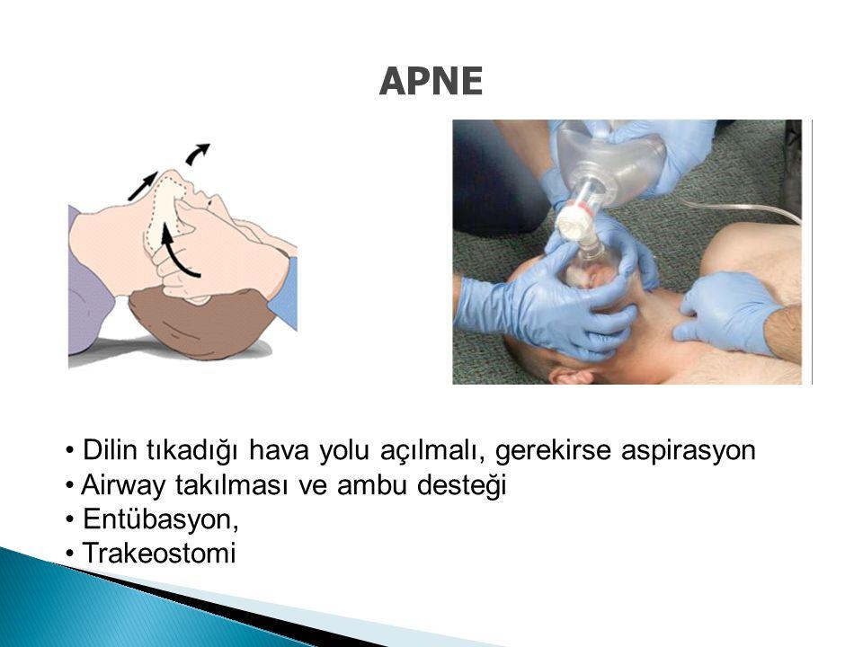 APNE Dilin tıkadığı hava yolu açılmalı, gerekirse aspirasyon Airway takılması ve ambu desteği Entübasyon, Trakeostomi
