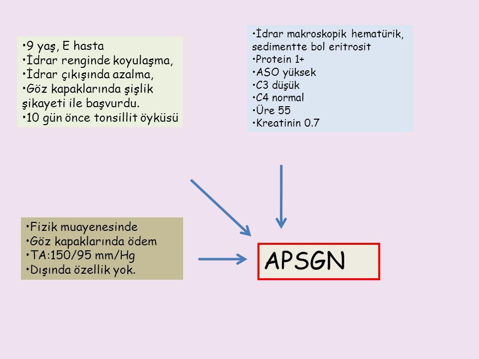 IF: C3, IgG ve IgM ve daha nadiren anti-IgG immundepozitleri Yıldızlı gökyüzü manzarası Çelenk formu APSGN-PATOLOJİ EM: Deve hörgücü (humps) Endokapiller proliferatif glomerülonefrit