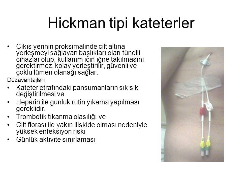 Hickman tipi kateterler Çıkıs yerinin proksimalinde cilt altına yerleşmeyi sağlayan başlıkları olan tünelli cihazlar olup, kullanım için iğne takılmas