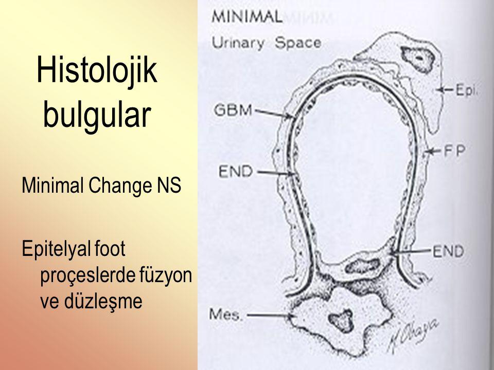 Histolojik bulgular Minimal Change NS Epitelyal foot proçeslerde füzyon ve düzleşme