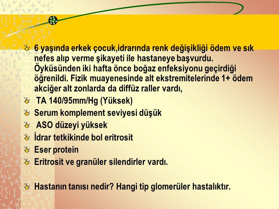 Nefrotik sendrom Dr. Dilara İçağasıoğlu 2006