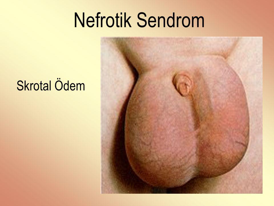 Nefrotik Sendrom Skrotal Ödem