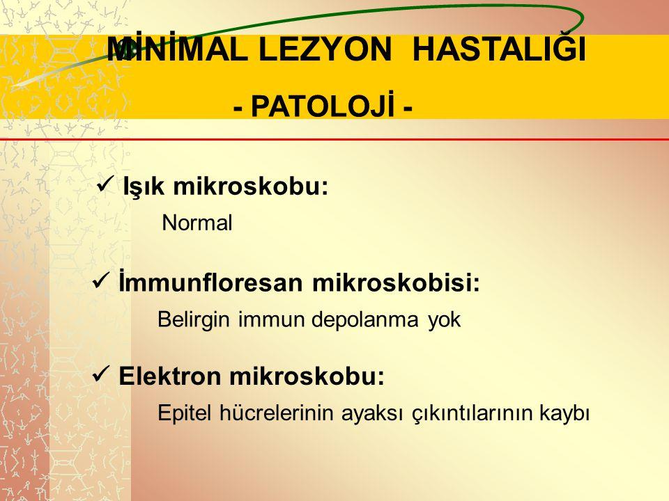. MİNİMAL LEZYON HASTALIĞI - PATOLOJİ - Işık mikroskobu: Normal İmmunfloresan mikroskobisi: Belirgin immun depolanma yok Elektron mikroskobu: Epitel h