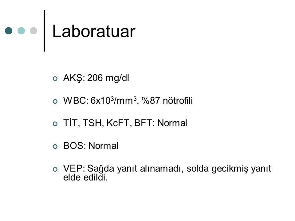 Laboratuar AKŞ: 206 mg/dl WBC: 6x10 3 /mm 3, %87 nötrofili TİT, TSH, KcFT, BFT: Normal BOS: Normal VEP: Sağda yanıt alınamadı, solda gecikmiş yanıt el