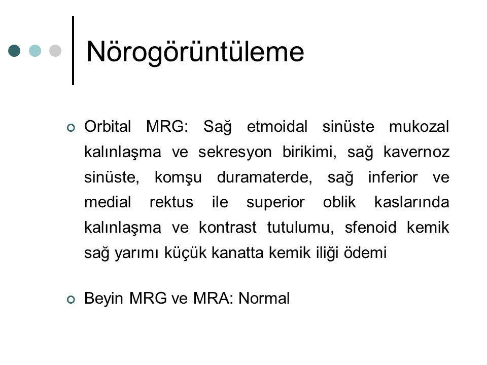 Nörogörüntüleme Orbital MRG: Sağ etmoidal sinüste mukozal kalınlaşma ve sekresyon birikimi, sağ kavernoz sinüste, komşu duramaterde, sağ inferior ve m