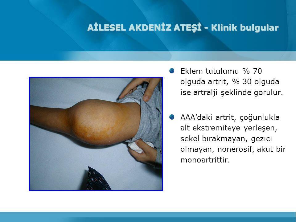 AİLESEL AKDENİZ ATEŞİ - Klinik bulgular Eklem tutulumu % 70 olguda artrit, % 30 olguda ise artralji şeklinde görülür. AAA'daki artrit, çoğunlukla alt