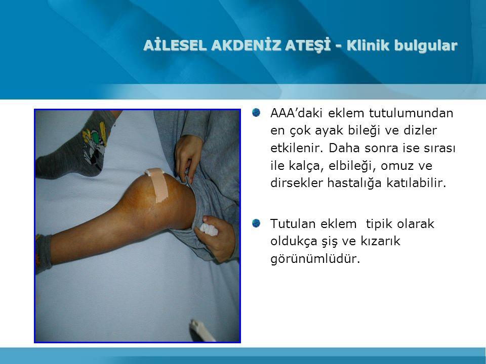 AİLESEL AKDENİZ ATEŞİ - Klinik bulgular AAA'daki eklem tutulumundan en çok ayak bileği ve dizler etkilenir. Daha sonra ise sırası ile kalça, elbileği,