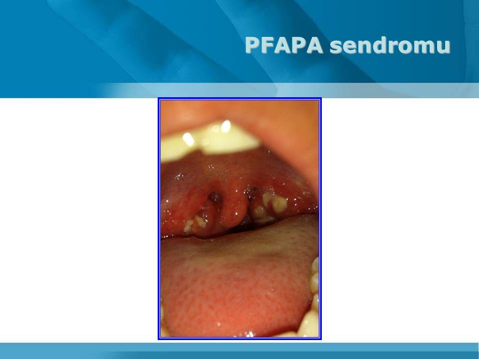 PFAPA sendromu