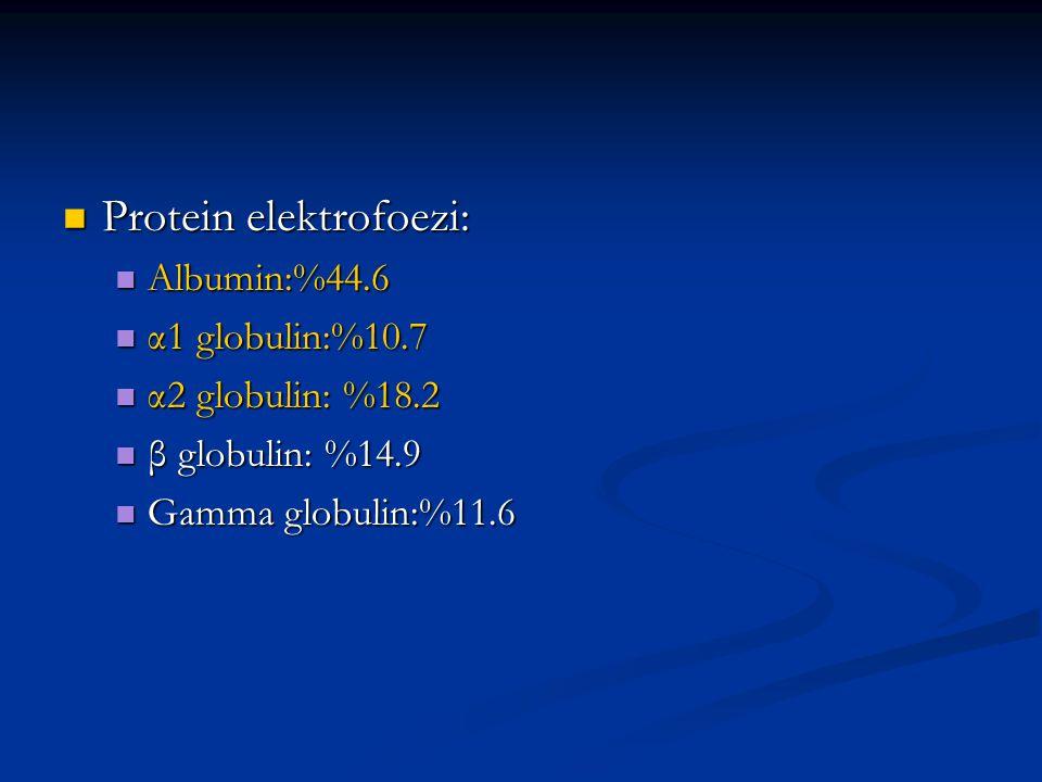 Kreatinin klirensi: 54ml/dk Kreatinin klirensi: 54ml/dk Esbach: 4.2 gr/gün Esbach: 4.2 gr/gün İdrarda ARB (-) İdrarda ARB (-) İdrar kültüründe üreme yok İdrar kültüründe üreme yok