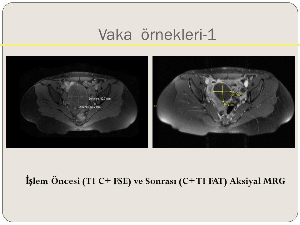 Vaka örnekleri-1 İş lem Öncesi (T1 C+ FSE) ve Sonrası (C+ T1 FAT) Aksiyal MRG