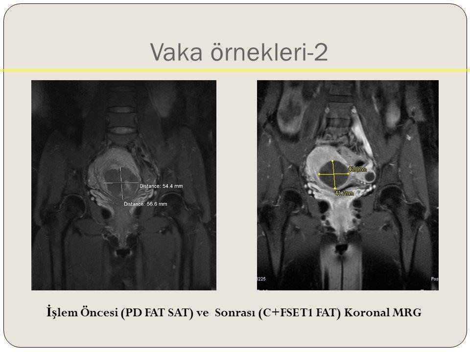 Vaka örnekleri-2 İş lem Öncesi (PD FAT SAT) ve Sonrası (C+FSE T1 FAT) Koronal MRG