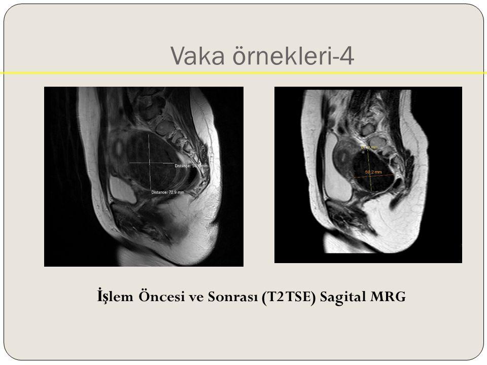 Vaka örnekleri-4 İş lem Öncesi ve Sonrası (T2 TSE) Sagital MRG