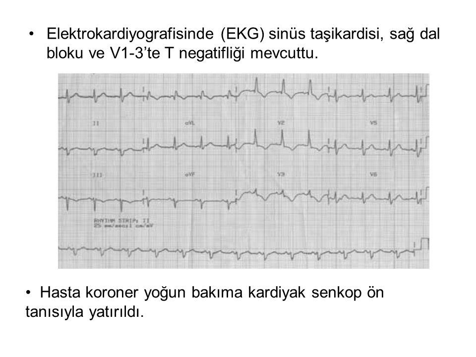 Elektrokardiyografisinde (EKG) sinüs taşikardisi, sağ dal bloku ve V1-3'te T negatifliği mevcuttu. Hasta koroner yoğun bakıma kardiyak senkop ön tanıs