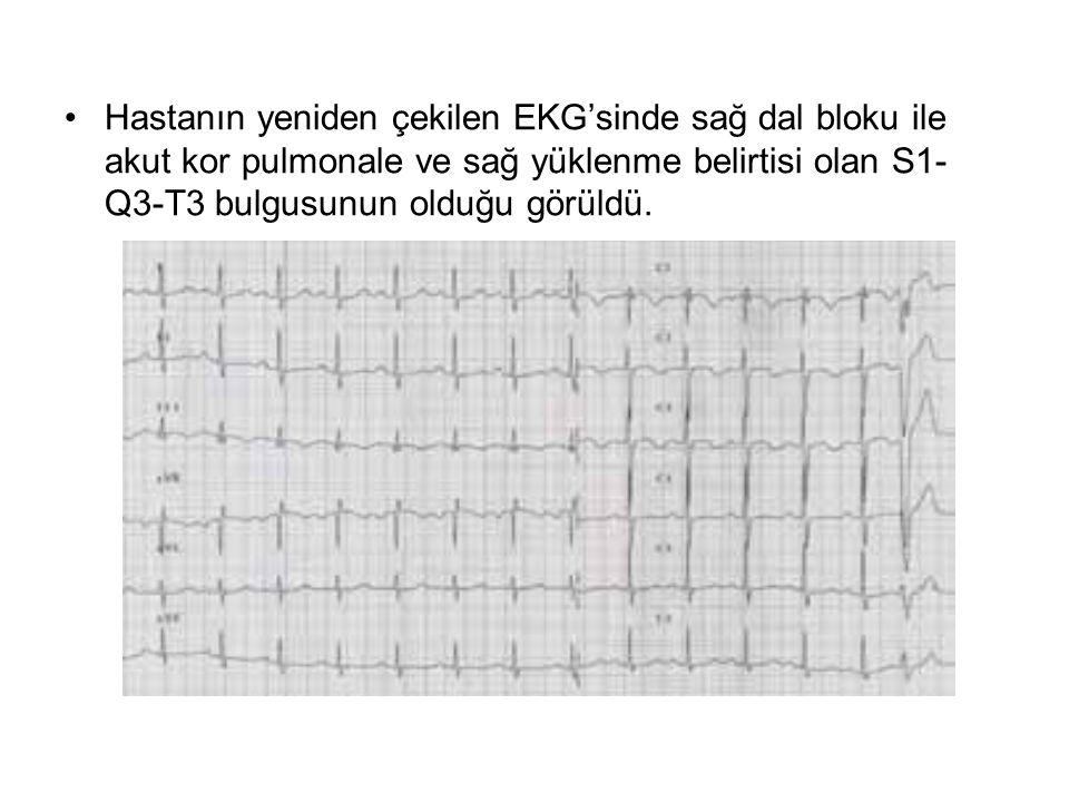 Hastanın yeniden çekilen EKG'sinde sağ dal bloku ile akut kor pulmonale ve sağ yüklenme belirtisi olan S1- Q3-T3 bulgusunun olduğu görüldü.
