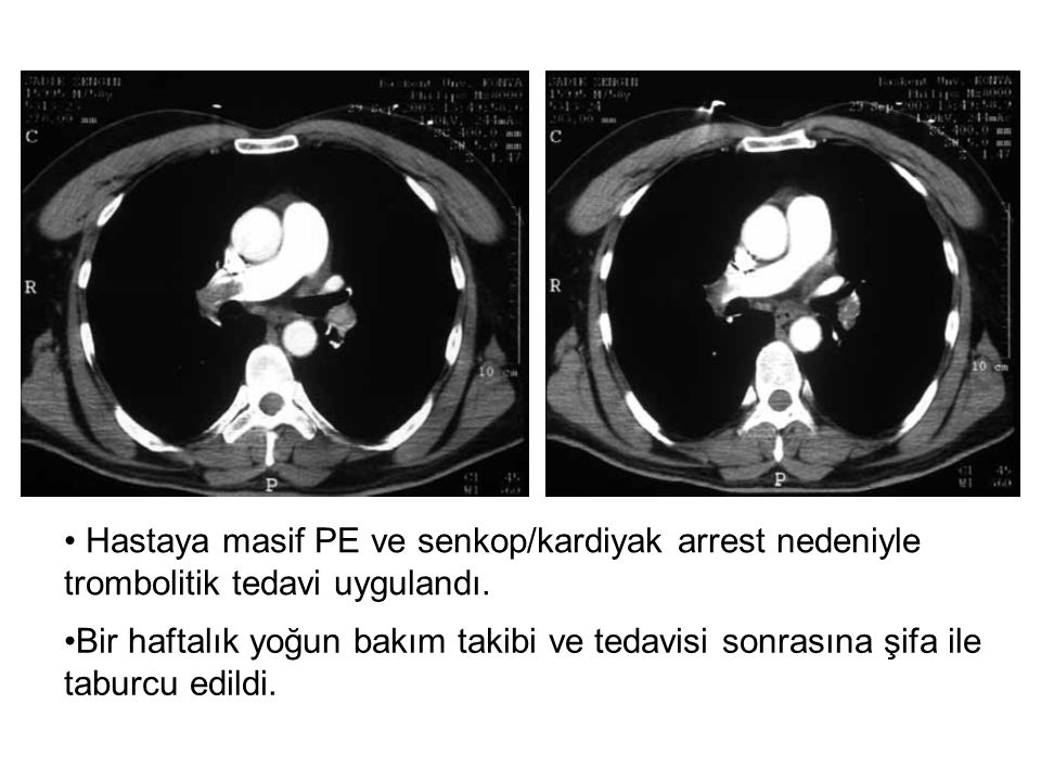Hastaya masif PE ve senkop/kardiyak arrest nedeniyle trombolitik tedavi uygulandı. Bir haftalık yoğun bakım takibi ve tedavisi sonrasına şifa ile tabu