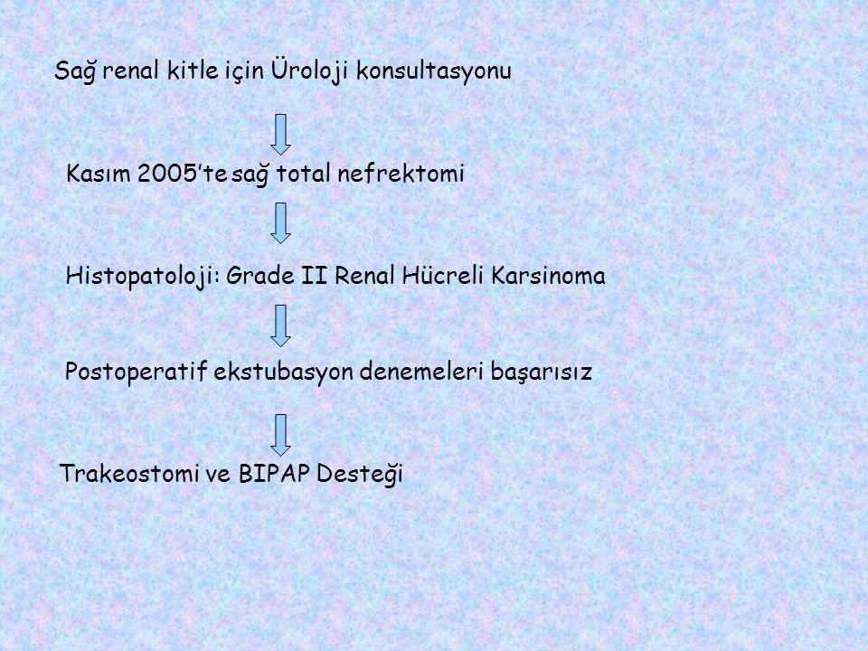 Sağ renal kitle için Üroloji konsultasyonu Kasım 2005'te sağ total nefrektomi Histopatoloji: Grade II Renal Hücreli Karsinoma Postoperatif ekstubasyon denemeleri başarısız Trakeostomi ve BIPAP Desteği