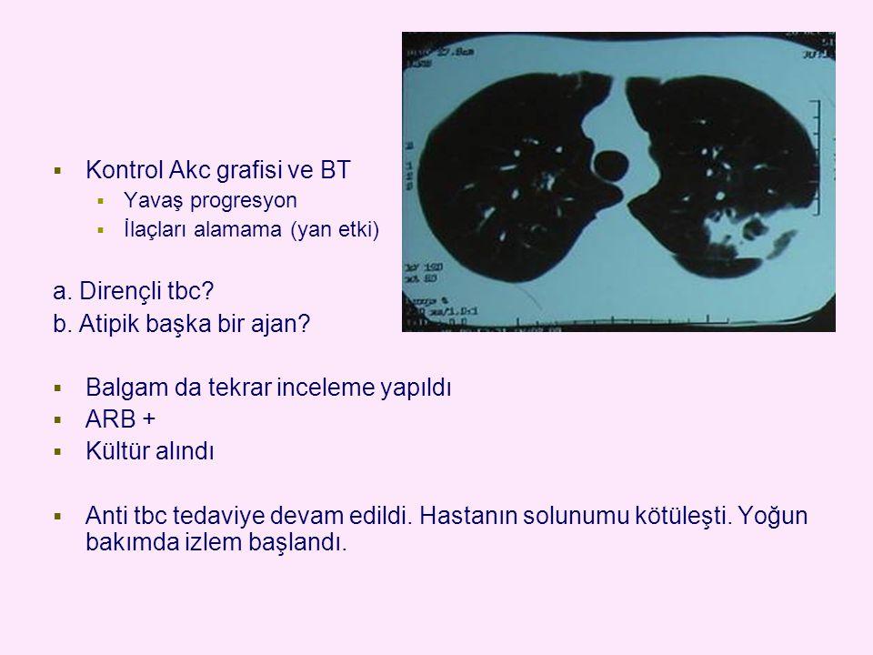  Kontrol Akc grafisi ve BT  Yavaş progresyon  İlaçları alamama (yan etki) a. Dirençli tbc? b. Atipik başka bir ajan?  Balgam da tekrar inceleme ya