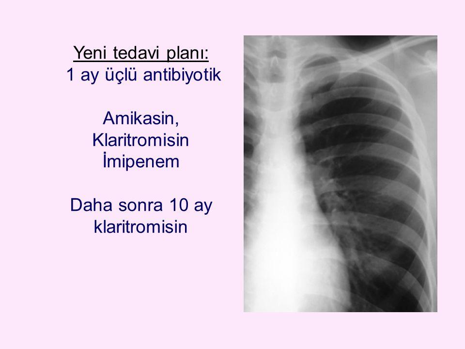Yeni tedavi planı: 1 ay üçlü antibiyotik Amikasin, Klaritromisin İmipenem Daha sonra 10 ay klaritromisin