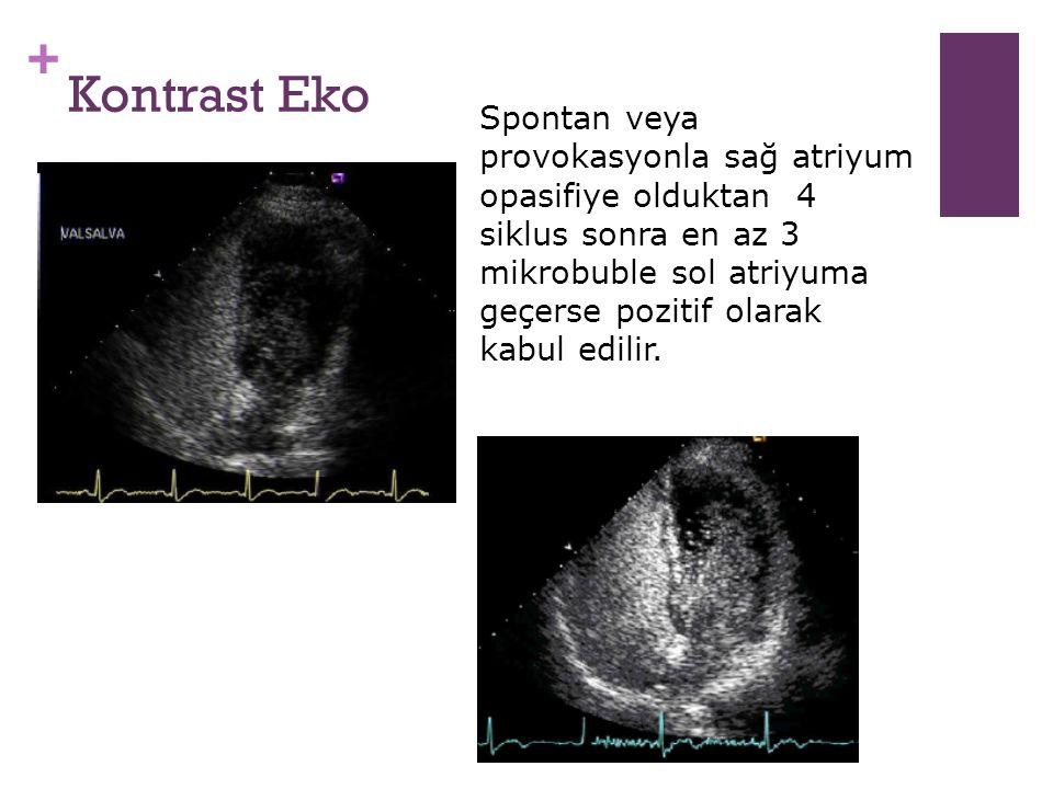 + Kontrast Eko Spontan veya provokasyonla sağ atriyum opasifiye olduktan 4 siklus sonra en az 3 mikrobuble sol atriyuma geçerse pozitif olarak kabul e