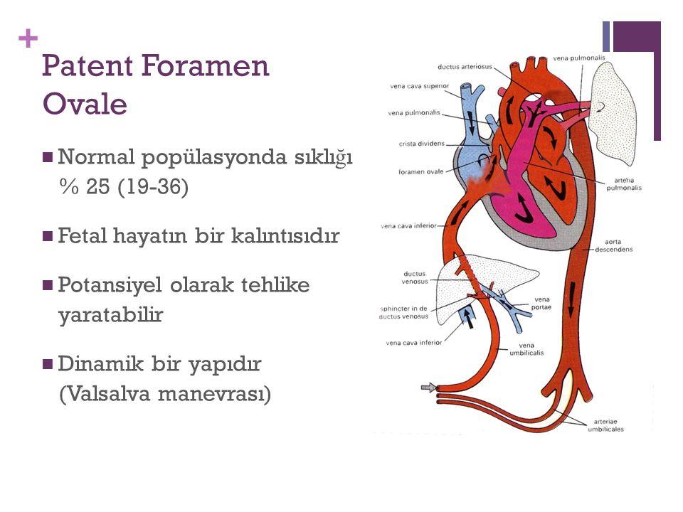 + Patent Foramen Ovale Normal popülasyonda sıklı ğ ı % 25 (19-36) Fetal hayatın bir kalıntısıdır Potansiyel olarak tehlike yaratabilir Dinamik bir yapıdır (Valsalva manevrası)