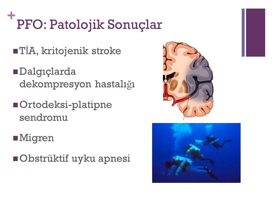 + PFO: Patolojik Sonuçlar T İ A, kritojenik stroke Dalgıçlarda dekompresyon hastalı ğ ı Ortodeksi-platipne sendromu Migren Obstrüktif uyku apnesi