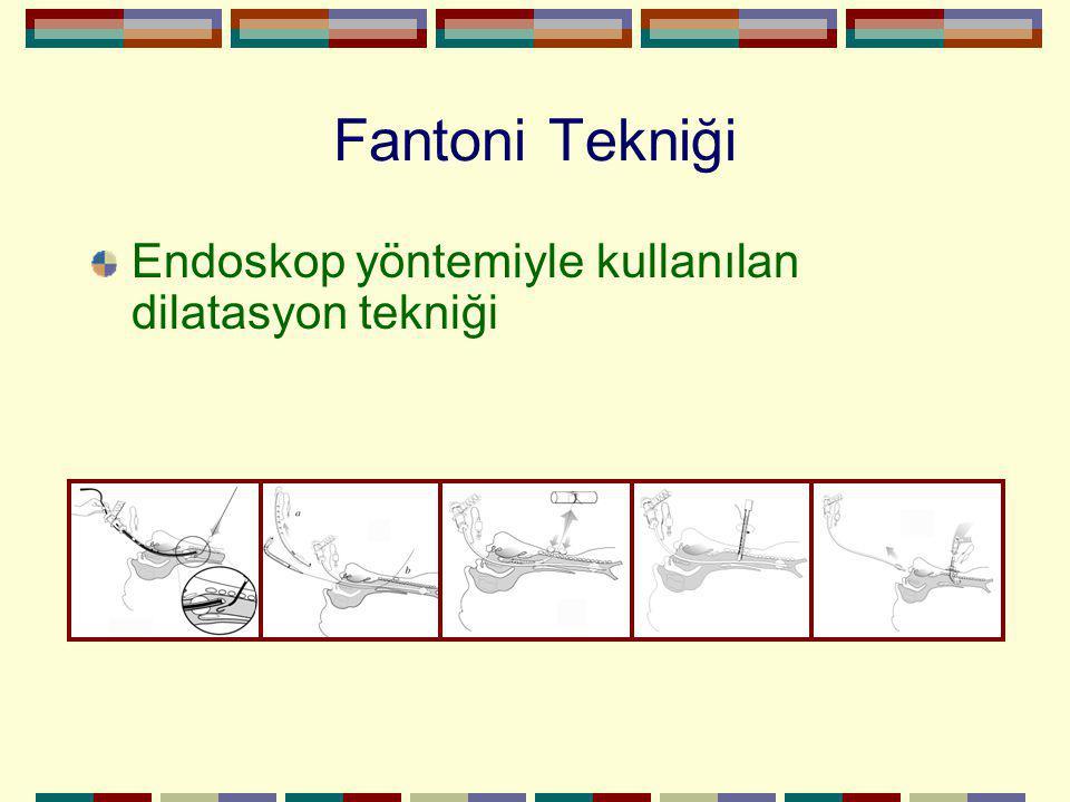 Fantoni Tekniği Endoskop yöntemiyle kullanılan dilatasyon tekniği