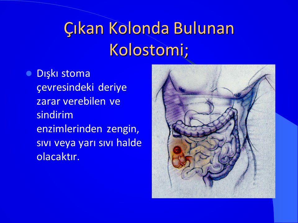 Çıkan Kolonda Bulunan Kolostomi; Dışkı stoma çevresindeki deriye zarar verebilen ve sindirim enzimlerinden zengin, sıvı veya yarı sıvı halde olacaktır
