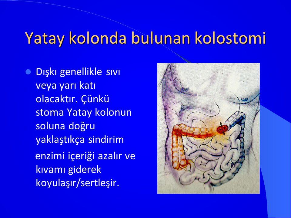 Yatay kolonda bulunan kolostomi Dışkı genellikle sıvı veya yarı katı olacaktır. Çünkü stoma Yatay kolonun soluna doğru yaklaştıkça sindirim enzimi içe