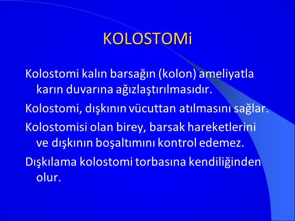 KOLOSTOMi Kolostomi kalın barsağın (kolon) ameliyatla karın duvarına ağızlaştırılmasıdır. Kolostomi, dışkının vücuttan atılmasını sağlar. Kolostomisi