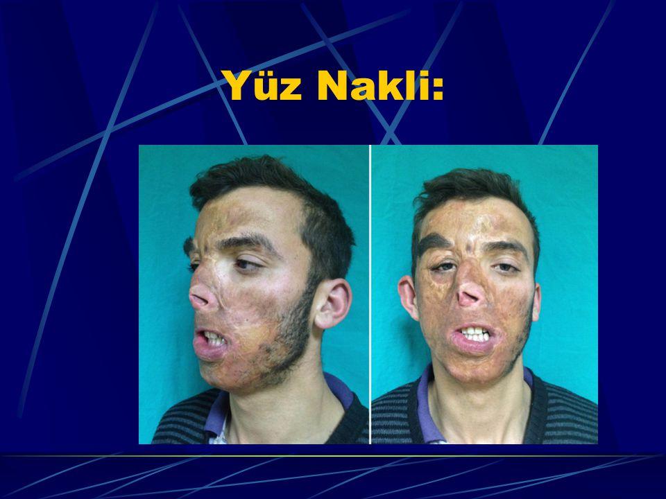 Yüz Nakli:
