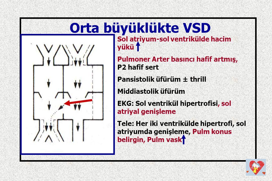 Orta büyüklükte VSD Sol atriyum-sol ventrikülde hacim yükü Pulmoner Arter basıncı hafif artmış, P2 hafif sert Pansistolik üfürüm ± thrill Middiastolik