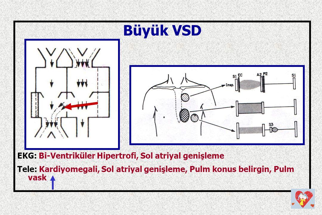 Büyük VSD EKG: Bi-Ventriküler Hipertrofi, Sol atriyal genişleme Tele: Kardiyomegali, Sol atriyal genişleme, Pulm konus belirgin, Pulm vask