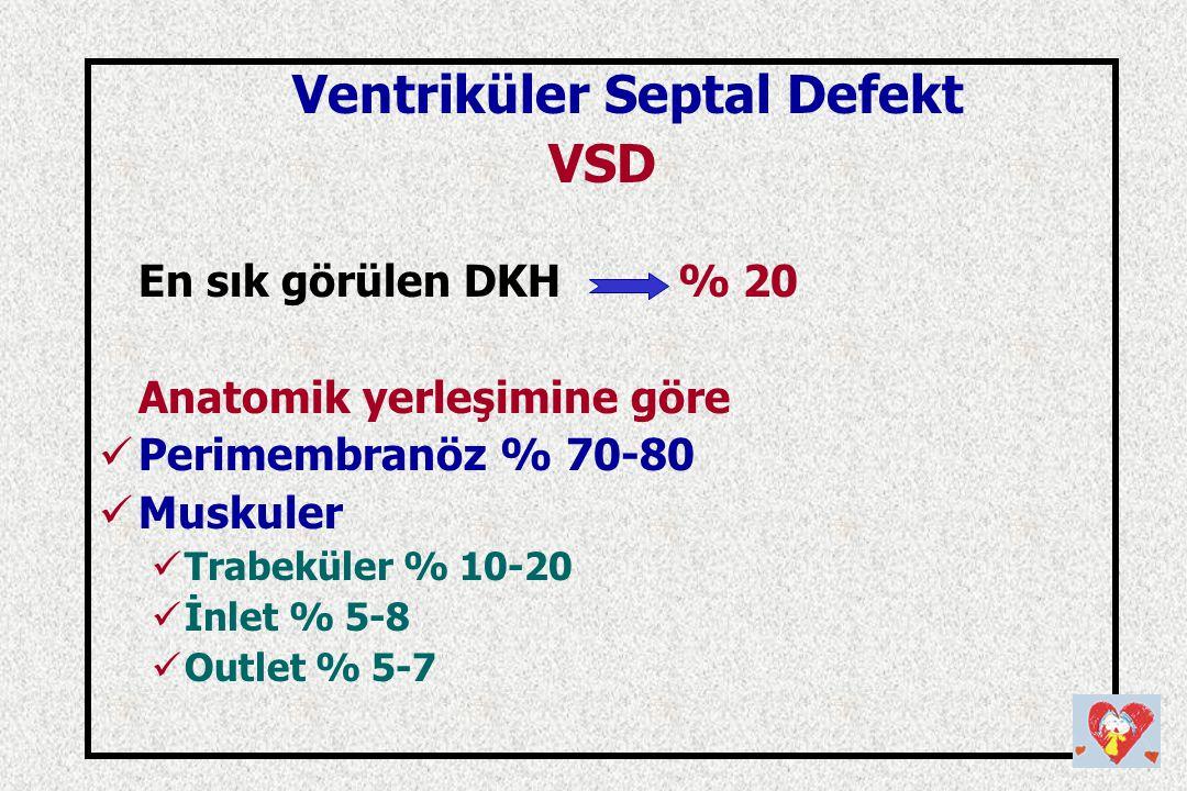 Ventriküler Septal Defekt VSD En sık görülen DKH % 20 Anatomik yerleşimine göre Perimembranöz % 70-80 Muskuler Trabeküler % 10-20 İnlet % 5-8 Outlet %