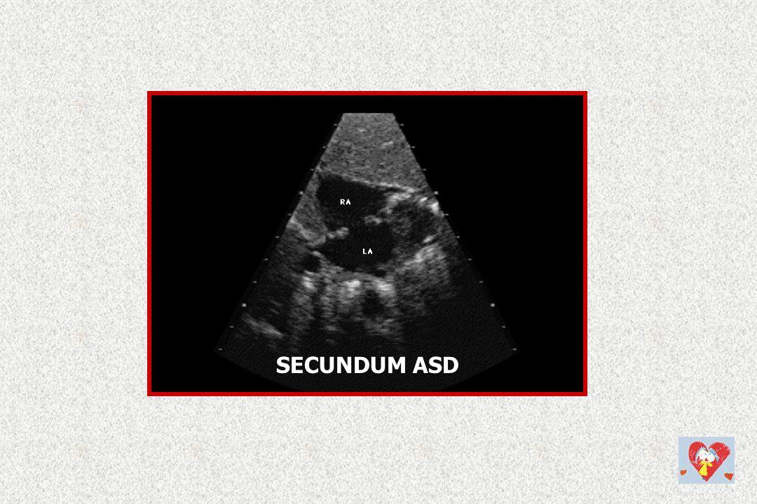 SECUNDUM ASD