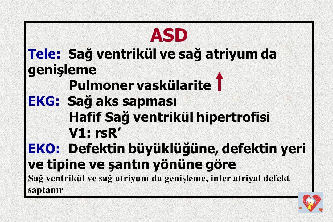 ASD Tele: Sağ ventrikül ve sağ atriyum da genişleme Pulmoner vaskülarite EKG: Sağ aks sapması Hafif Sağ ventrikül hipertrofisi V1: rsR' EKO: Defektin