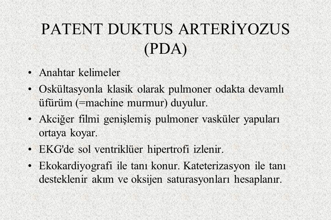 PATENT DUKTUS ARTERİYOZUS (PDA) Anahtar kelimeler Oskültasyonla klasik olarak pulmoner odakta devamlı üfürüm (=machine murmur) duyulur. Akciğer filmi