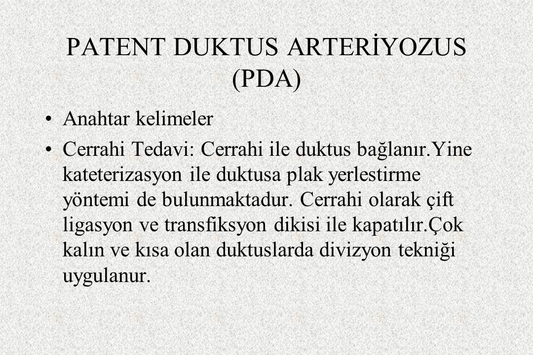 PATENT DUKTUS ARTERİYOZUS (PDA) Anahtar kelimeler Cerrahi Tedavi: Cerrahi ile duktus bağlanır.Yine kateterizasyon ile duktusa plak yerlestirme yöntemi