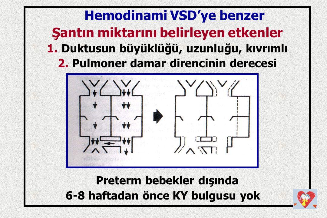 Hemodinami VSD'ye benzer Şantın miktarını belirleyen etkenler 1.Duktusun büyüklüğü, uzunluğu, kıvrımlı 2.Pulmoner damar direncinin derecesi Preterm be
