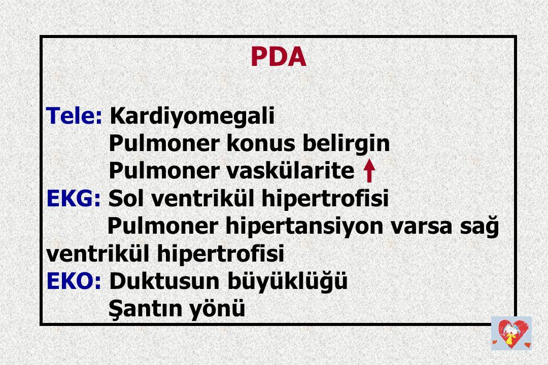 PDA Tele: Kardiyomegali Pulmoner konus belirgin Pulmoner vaskülarite EKG: Sol ventrikül hipertrofisi Pulmoner hipertansiyon varsa sağ ventrikül hipert
