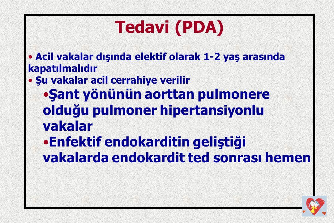Tedavi (PDA) Acil vakalar dışında elektif olarak 1-2 yaş arasında kapatılmalıdır Şu vakalar acil cerrahiye verilir Şant yönünün aorttan pulmonere oldu