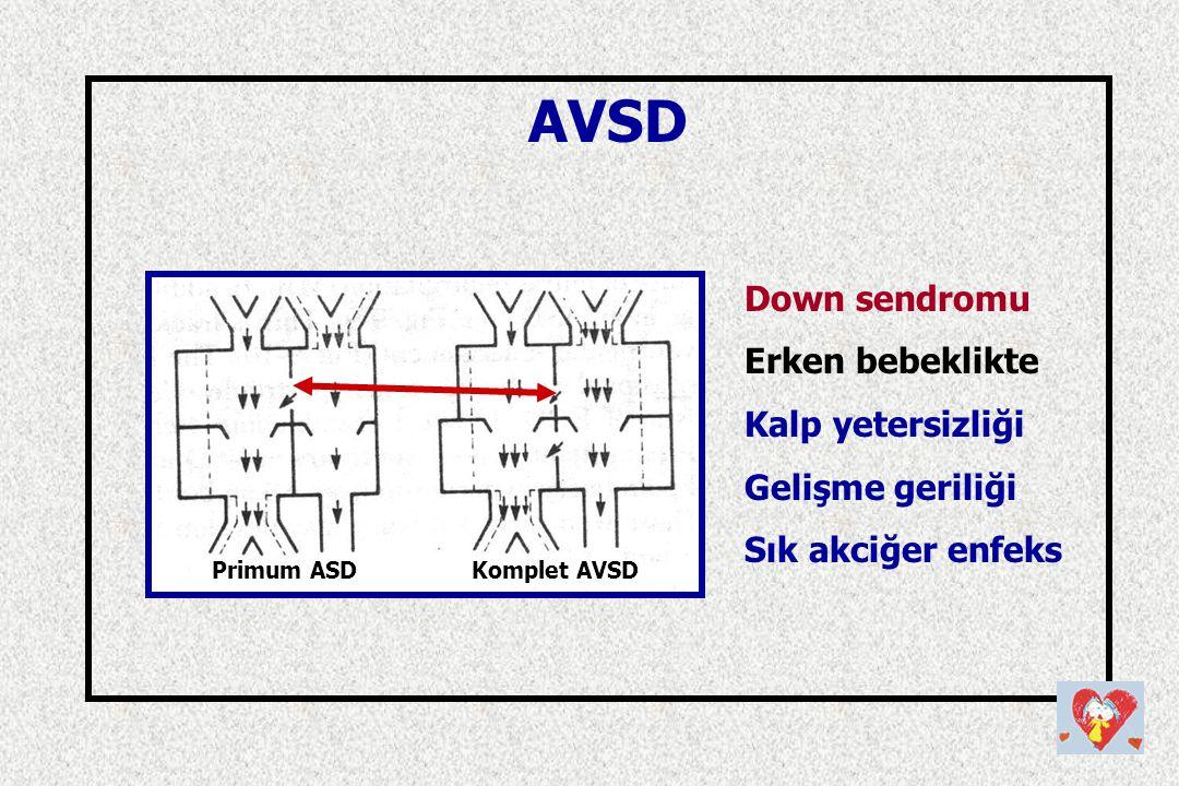 AVSD Down sendromu Erken bebeklikte Kalp yetersizliği Gelişme geriliği Sık akciğer enfeks Primum ASDKomplet AVSD