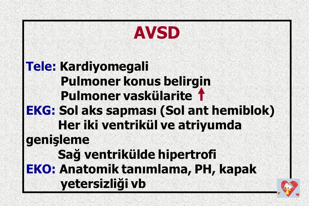 AVSD Tele: Kardiyomegali Pulmoner konus belirgin Pulmoner vaskülarite EKG: Sol aks sapması (Sol ant hemiblok) Her iki ventrikül ve atriyumda genişleme