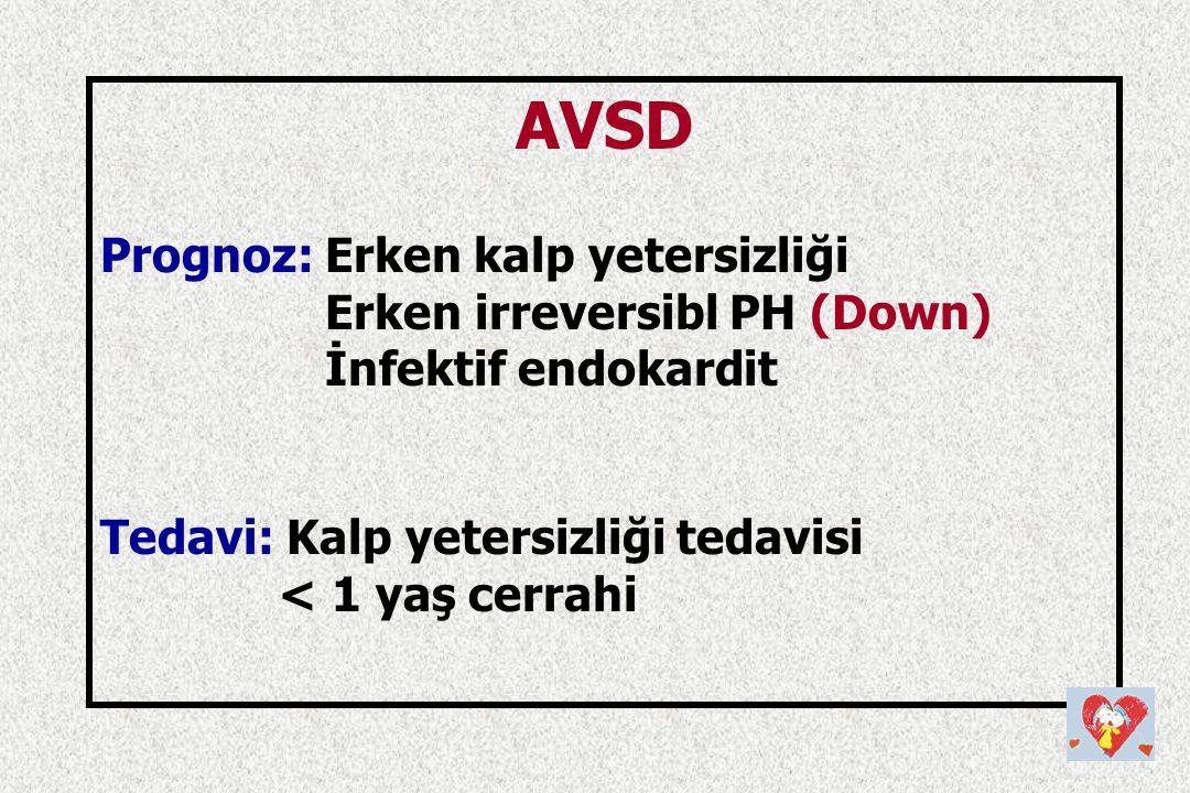 AVSD Prognoz: Erken kalp yetersizliği Erken irreversibl PH (Down) İnfektif endokardit Tedavi: Kalp yetersizliği tedavisi < 1 yaş cerrahi