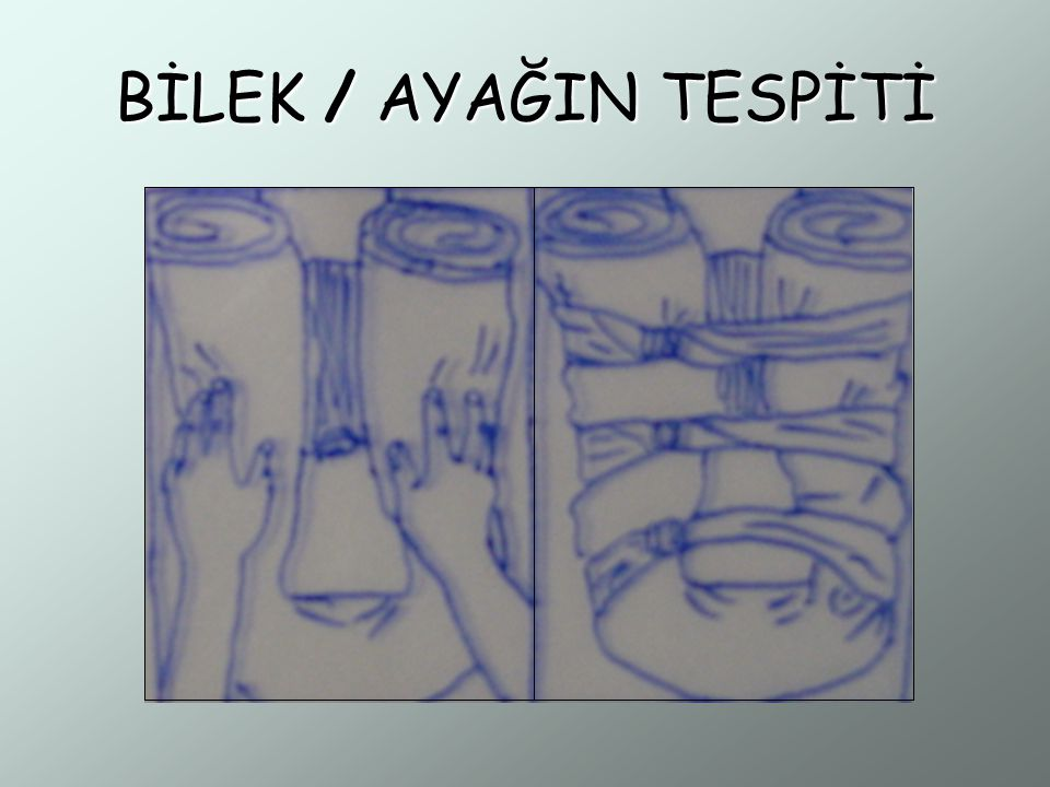 BİLEK / AYAĞIN TESPİTİ